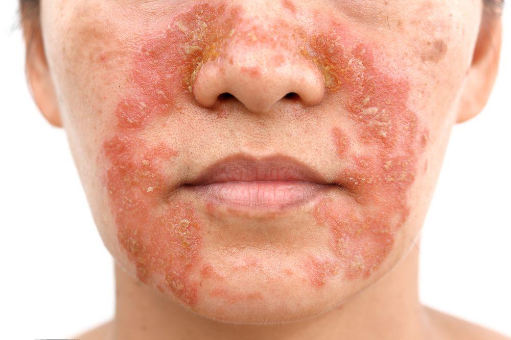 Qu'est-ce qu'une dermite séborrhéique